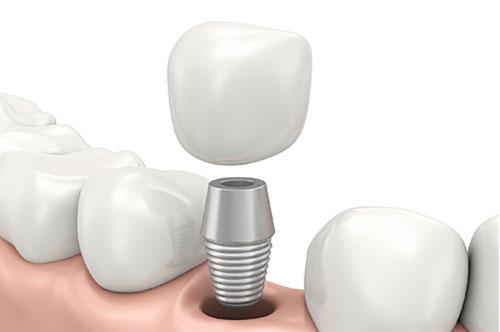Dental Implants | 1 | Uptown Dental Associates | Albuquerque, NM