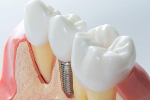 Dental Implants   3   Uptown Dental Associates   Albuquerque, NM